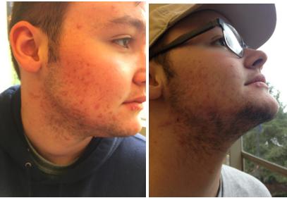 graham's beard